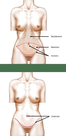 Abdominoplastie ou lifting du ventre