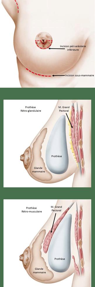 Augmentation mammaire par prothèse mammaire