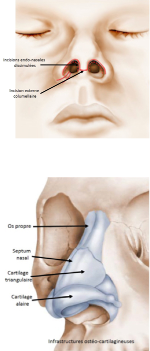 Chirurgie du nez - Rhinoplastie