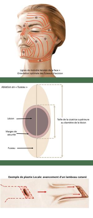 Dermatochirurgie ou chirurgie des lésions cutanées