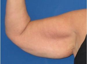 Indications lifting de bras
