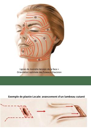 Traitement et reprise de cicatrice